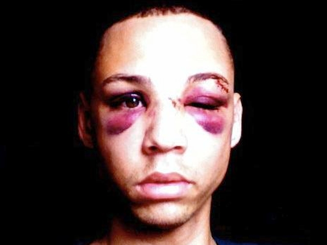 Facebook user Damian Furtch posted images of himself with two black eyes on Sunday.