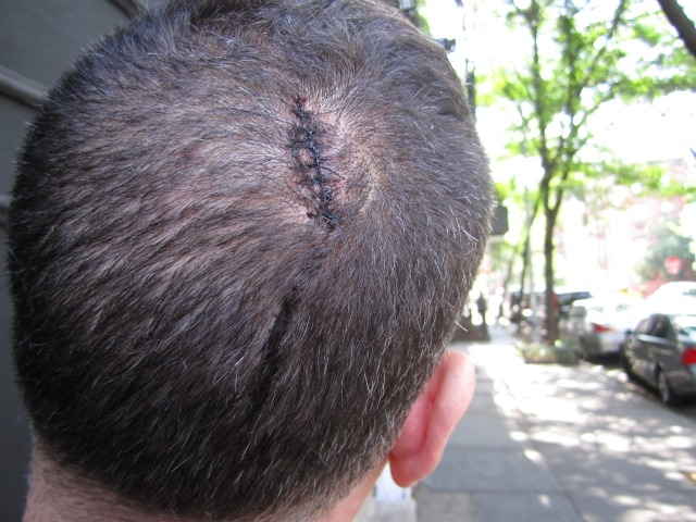 He got stitches in the back of his head, too.