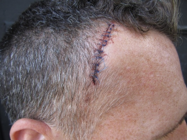 A closeup of the stitches on Ives' head.