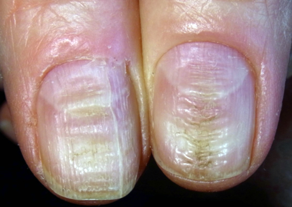 12 Gross Reasons To Stop Biting Your Nails Today