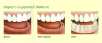 Dental Implants: Are they an option for you?