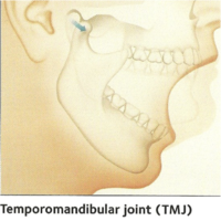 What is Temporomandibular Disorder (TMD)?