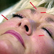 Acupuncture Gets a Face Lift and Much More