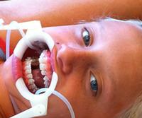 Dr. Eric C. Edstrom, DDS - Santa Barbara, CA - Orthodontics