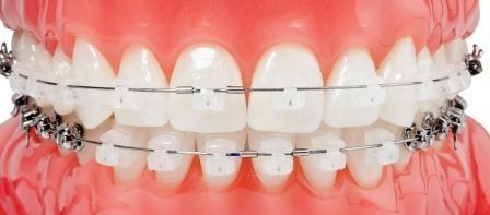 7 motivos para elegirnos smore newsletters - Como alinear los dientes en casa sin brackets ...