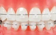 Damon System  Mas que alinear dientes