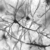 Rrpyramidal_hippocampal_neuron_40x_shop_thumb
