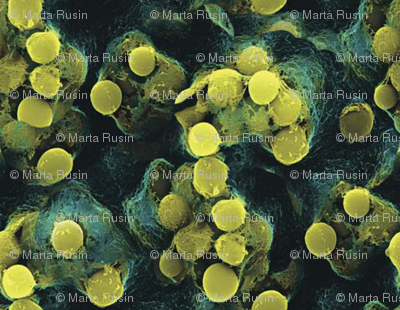 strep-throat-bacteria