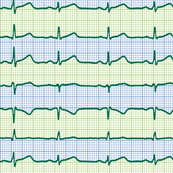 EKG:  a chevron from the heart