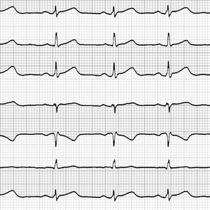 EKG:  a chevron from the heart (grey)