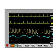 Cardiac Nurse Monitor