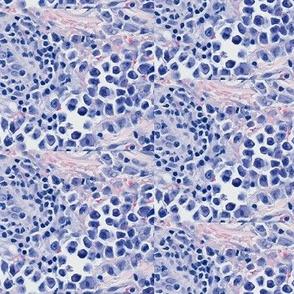 intravascular_lymphoma