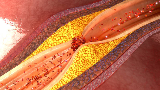 New Cholesterol-Lowering Drug Improves Care for People with HIV