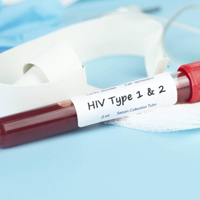 Breakthrough Science: New HIV Test Can Tell Difference Between HIV-1 and HIV-2
