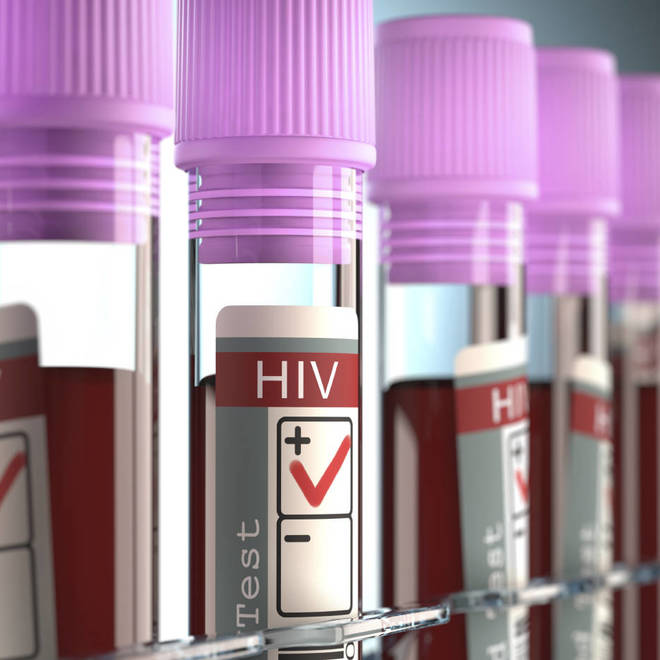 Top 10 Scientific HIV Breakthroughs of 2015