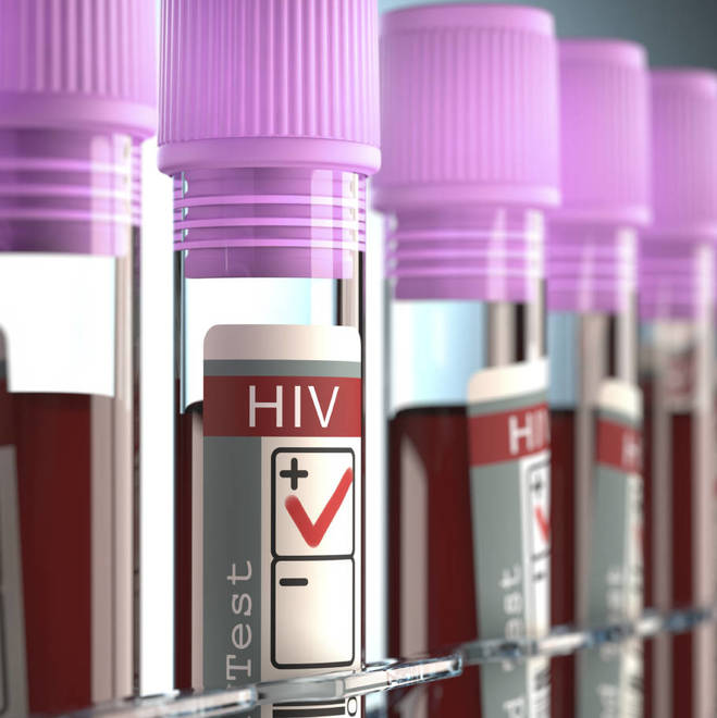 Colorado County Sees Huge Spike in HIV Infections