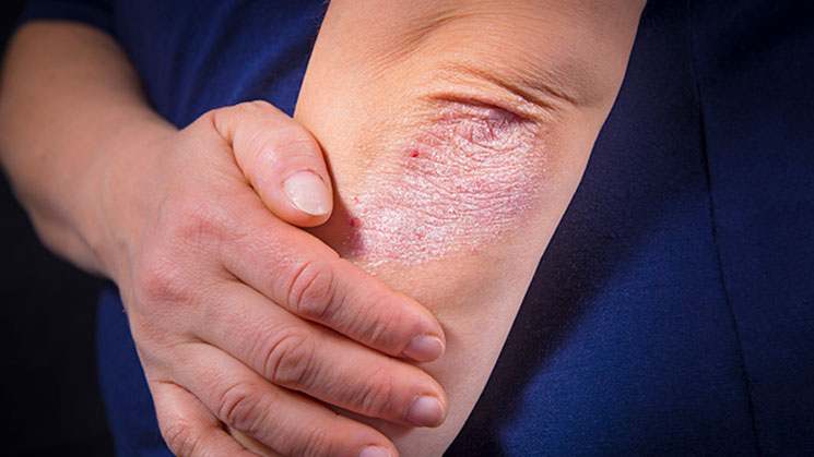 eczema060617