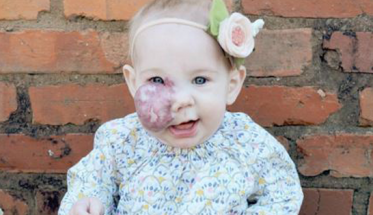 birthmark-baby