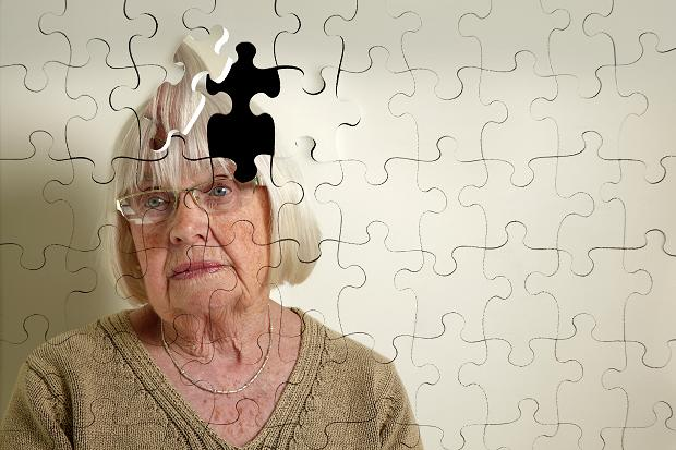 Study: Later Retirement May Help Prevent Dementia