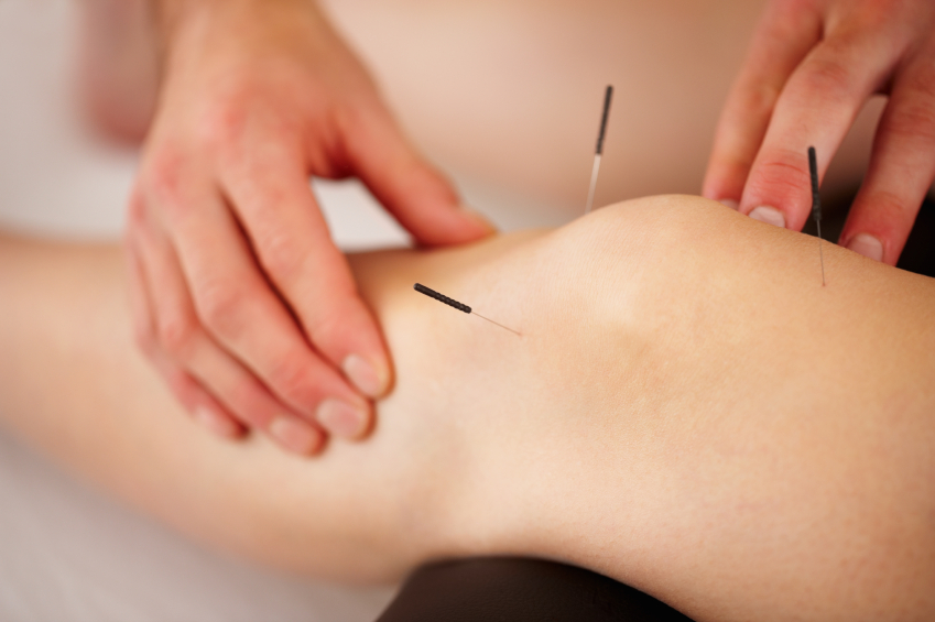 Acupuncture Effective In Reducing Osteoarthritis Knee Pain