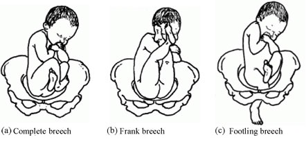 Fig 1 - The different types of breech presentation.