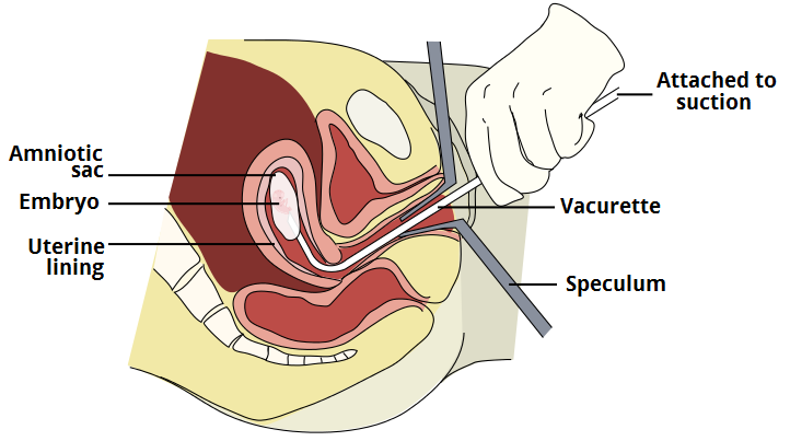 Fig 4 - Vacuum aspiration; a procedure used in the surgical management of miscarriage.