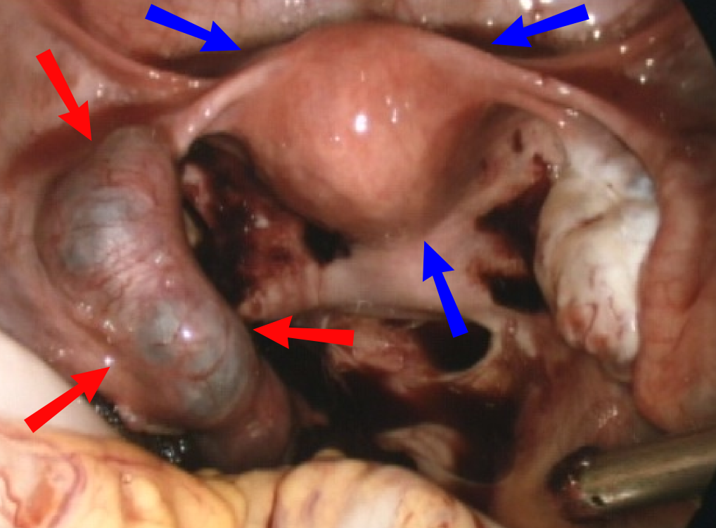 Fig 4 - Laparoscopic view of ectopic pregnancy within the left fallopian tube (red arrows). Uterus marked by blue arrows.