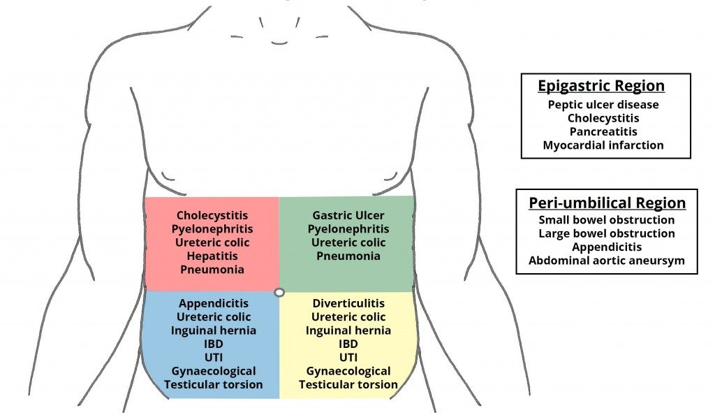 Fig 2 - Differential diagnoses for pain in each region of the abdomen.