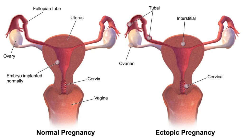 Fig 1 - An ectopic pregnancy is one that is implanted outside the uterine cavity.