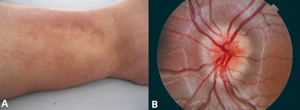 Fig 1 - Features of eclampsia. A) Peripheral oedema in the ankle region, indicated the persisting indentation of the fingers. B) Papilloedema, observed via fundoscopy.