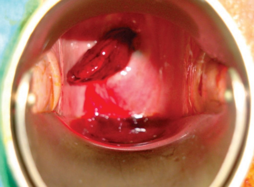 Vaginal polyp removal sex