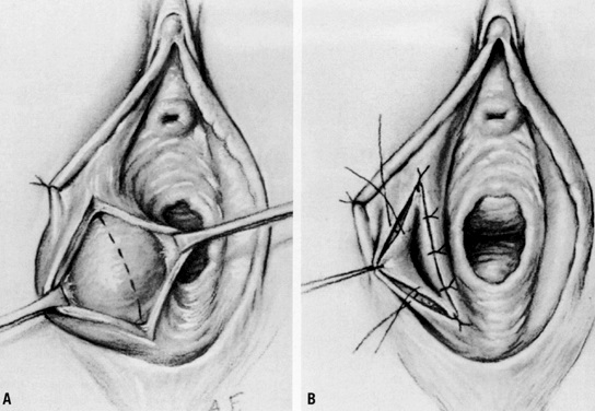 Fig 3 - Marsupialisation of a Bartholin's gland cyst.