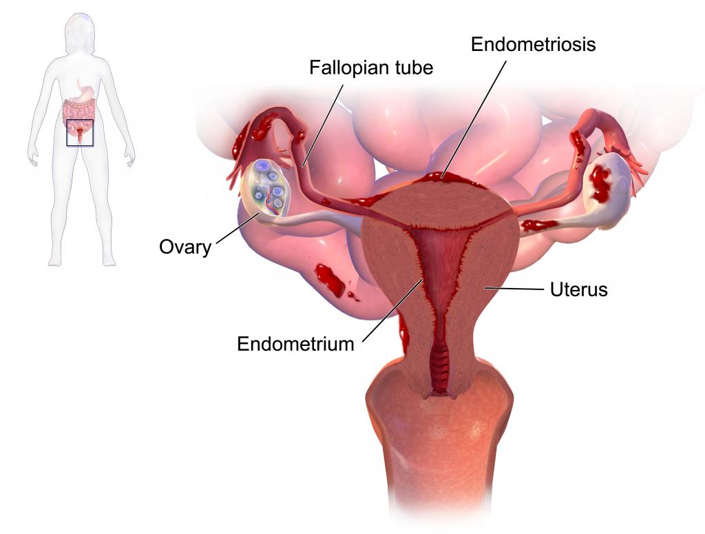 Endometriosis ovarian cyst