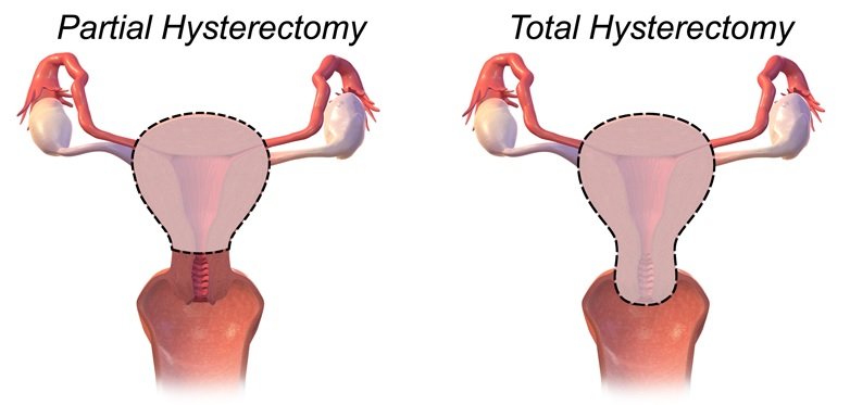Fig 4 - Partial (subtotal) and total hysterectomy.
