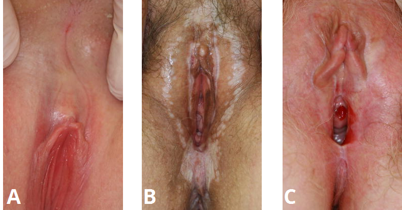Fig 1 - The clinical features of lichen sclerosus. A) Clitoral hood fusion. B) White patches in a figure of 8 distribution. C) Introital erosions
