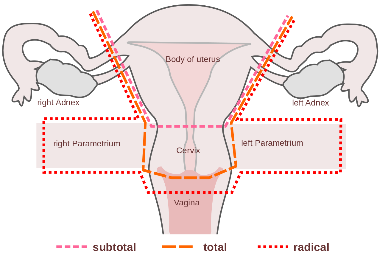 Hysterectomy Procedure Indications Complications Teachmeobgyn
