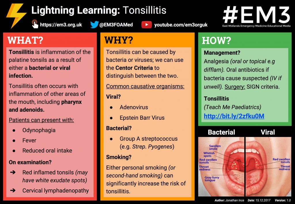 Tonsillitis Clinical Features Management Teachmepaediatrics