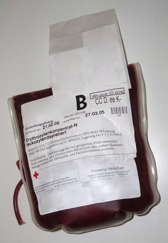 Blood products are required to correct heavy blood loss and must be x-matched before use.