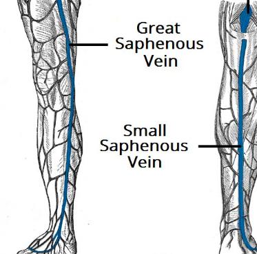 The Varicose Vein Examination Teachmesurgery