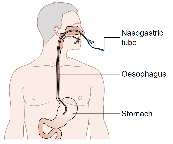 Fig 2 - A nasogastric tube should be inserted as part of management of post-operative ileus.