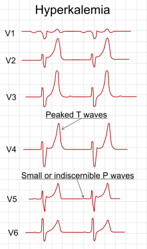 Fig 1 - ECG findings in the precordial leads in hyperkalaemia