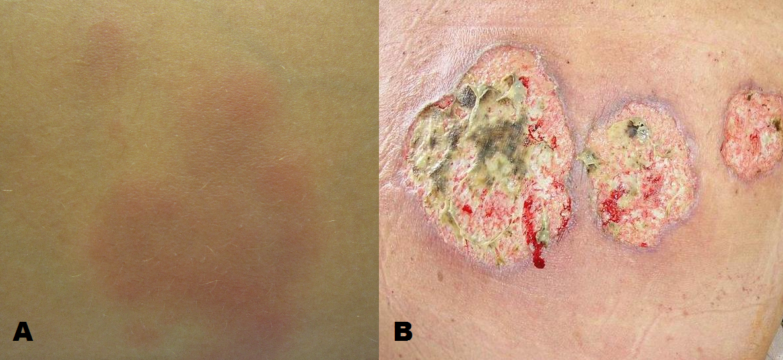 Fig 2 - Extra-intestinal manifestation of Crohn's disease: (A) Erythema nodosum (B) Pyoderma gangrenosum