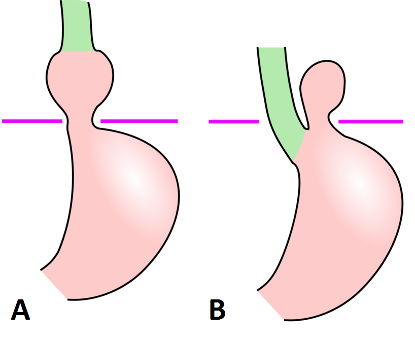 Fig 1 - Types of Hiatus Hernia (A) Sliding (B) Rolling
