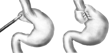 Fig 3 - Fundoplication, wrapping the fundus of the stomach around the lower oesophagus and stitching in place