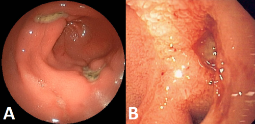 Fig 2 - Features of peptic ulcers on endoscopy (A) peptic ulcer located in the gastric antrum (B) haemorrhaging gastric ulcer