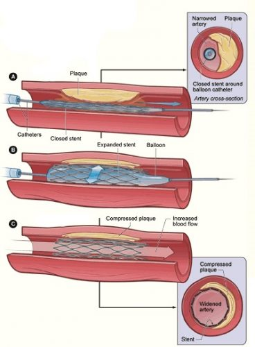Fig 3 - Angioplasty and stenting. This is one of the surgical options available for the treatment of chronic limb ischaemia.