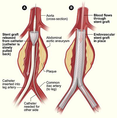 Abdominal Aortic Aneurysm Clinical Features Teachmesurgery