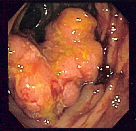 Fig 1 - Endoscopic image of colorectal adenocarcinoma. GI cancers can cause peforation via obstruction, or via direct invasion of the bowel wall.