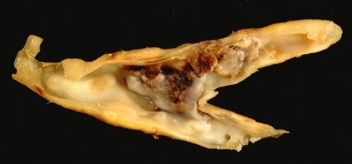 Fig 1 - Atherosclerotic plaque from a carotid endarterectomy specimen