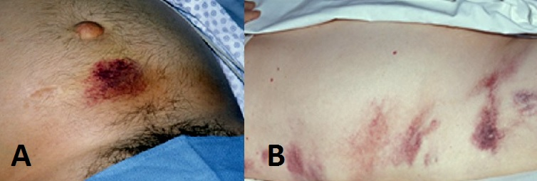 Fig 1 - Clinical Signs of Retroperitoneal Haemorhhage, as seen in acute pancreatitis (A) Cullen's Sign (B) Grey-Turner's Sign
